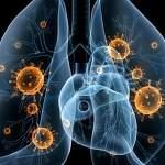 На прошлой неделе в Новгородской области зарегистрировали более 300 случаев пневмонии