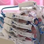 В Великом Новгороде испытывают нейротренажер для переживших инсульт