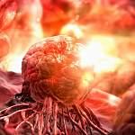 Что может стать профилактикой онкологических заболеваний после 40 лет?