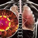 В Шимском районе зарегистрирован первый случай коронавирусной инфекции
